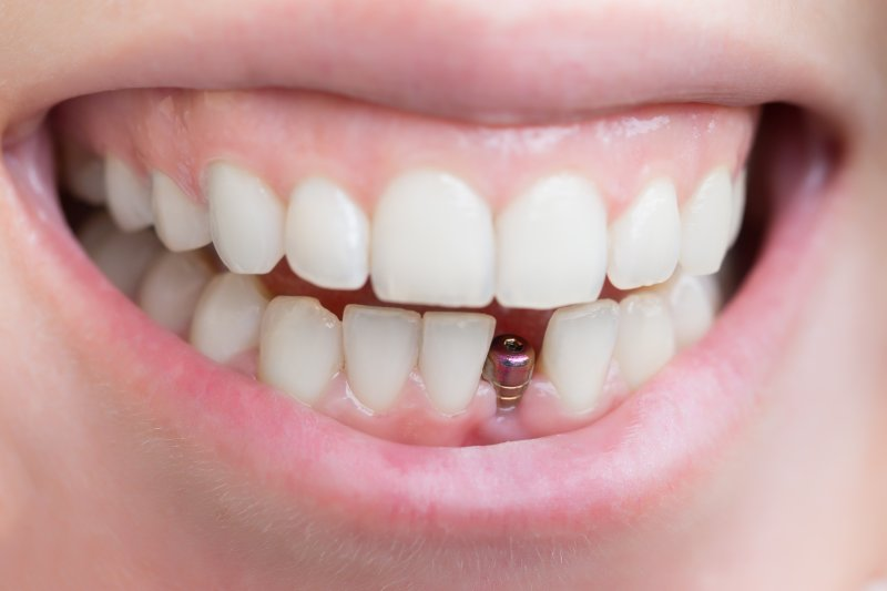 implanted post in smile