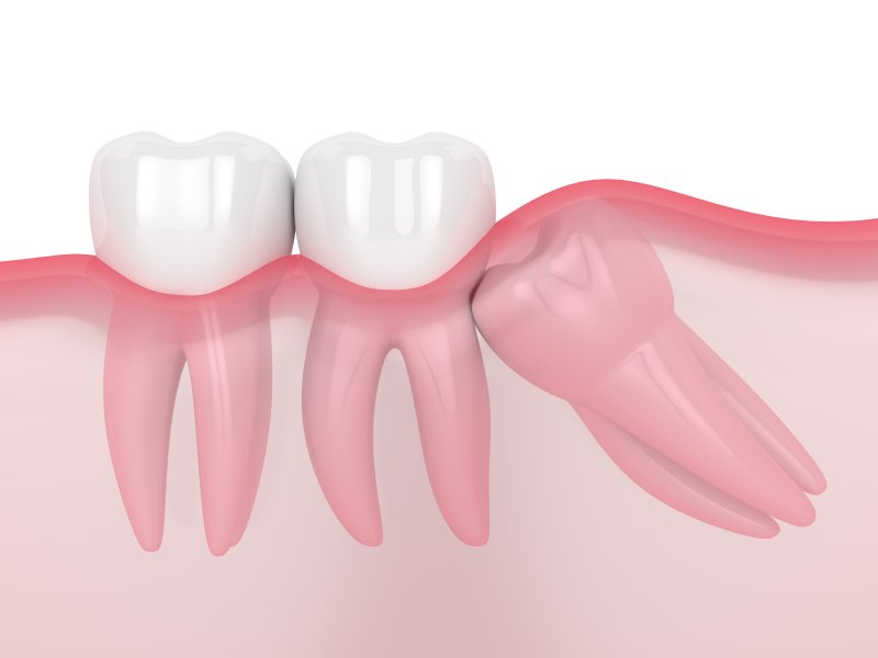 a digital image of an impacted wisdom tooth pressing against healthy teeth on the lower arch