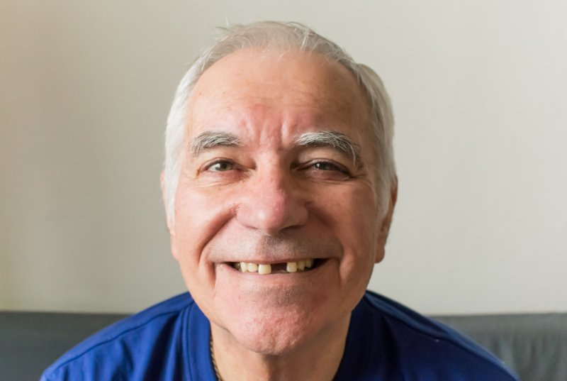 an older man wearing a blue shirt and revealing a missing tooth