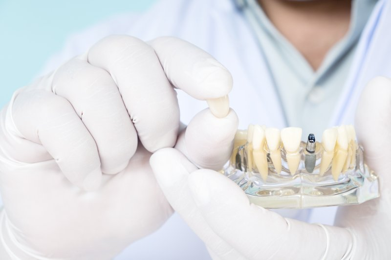 an up-close view of a dentist holding the crown that belongs on top of a dental implant situated in the lower arch