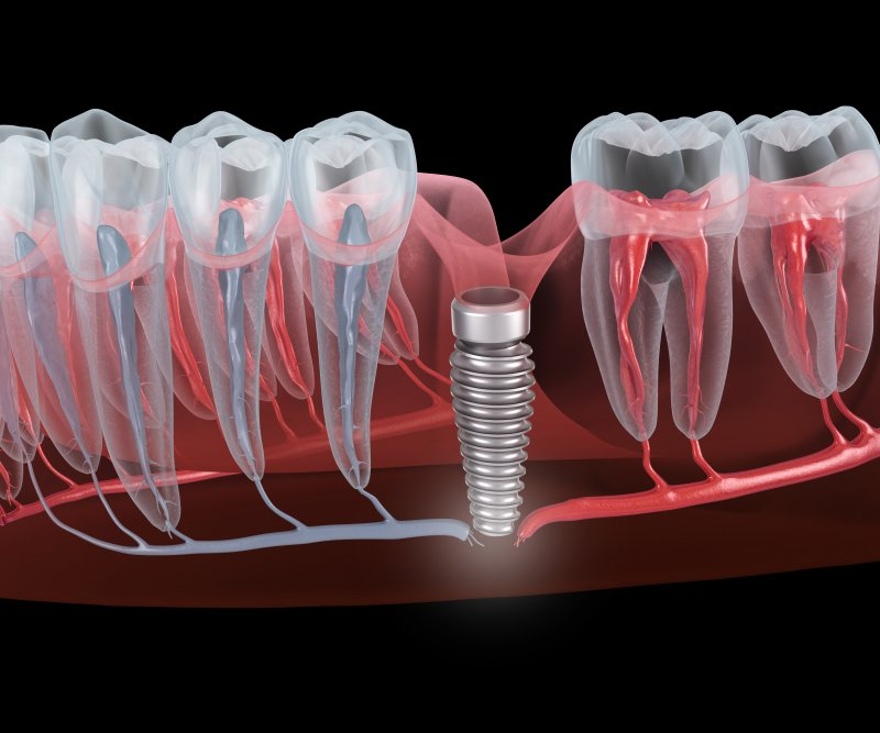 A digital image of a failed dental implant and the nerve breaking